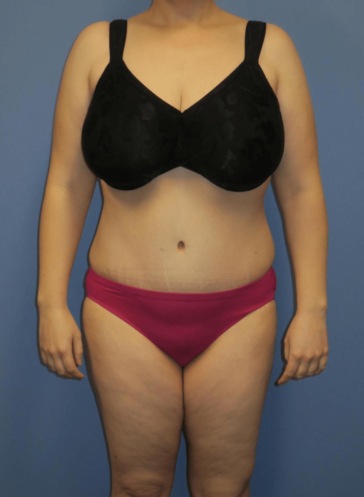 liposuction-2
