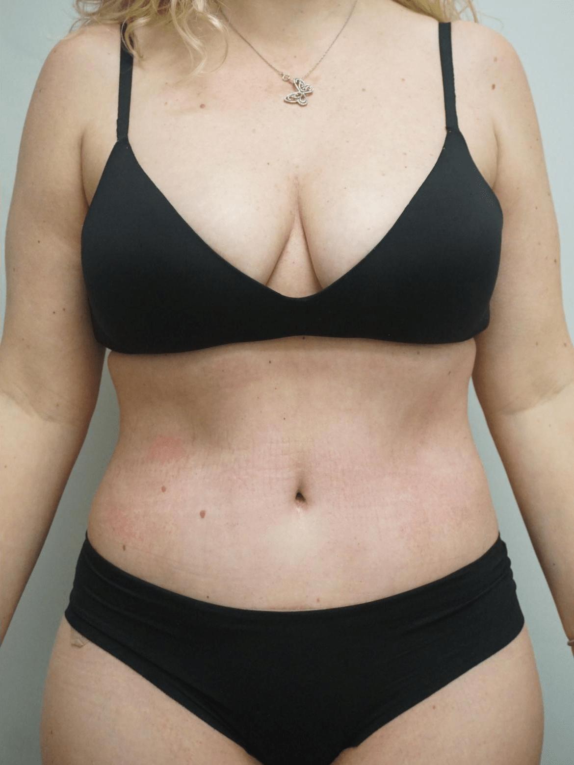 liposuction-4