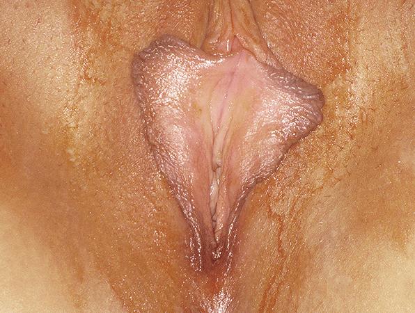 Labiaplasty-3