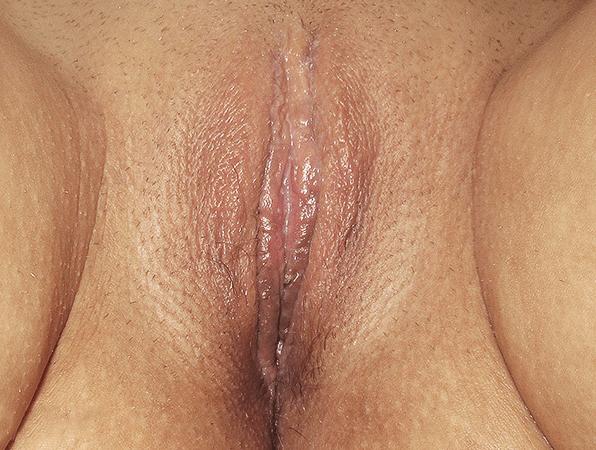 Labiaplasty-4