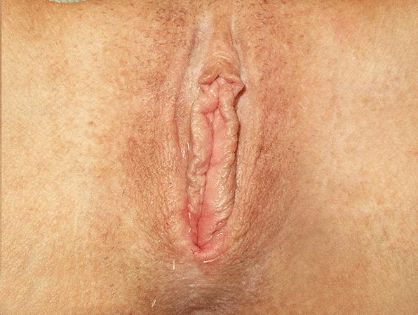 Labiaplasty-6
